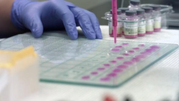 동물위생시험소 질병진단 검사1.jpg